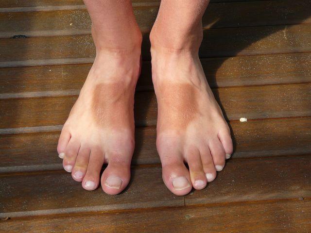 Pom's surnburnt feet in Australia - P1010926.JPG
